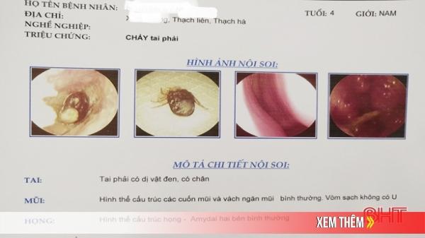 Bác sỹ Hà Tĩnh cảnh báo: Gần đây, nhiều em nhỏ bị ve chó ký sinh trong tai